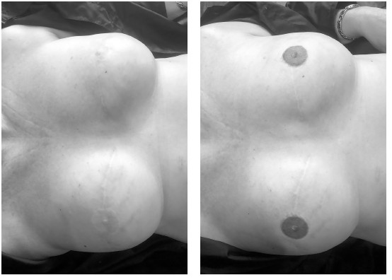 Before (left) and after (right) areola restoration. The before picture was taken at consultation after reconstrutive and plastic surgery. The after photo is immediately following the areola restoration procedure. -Micro Blading Alabama